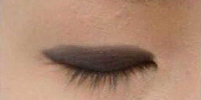 单眼皮变双眼皮的方法 5个步骤轻松拥有双眼皮