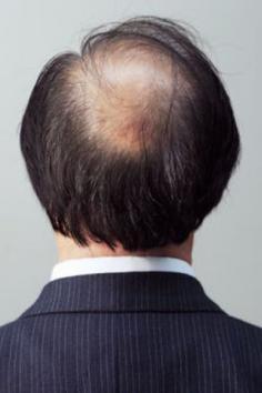 导致男人脱发的原因有哪些 其表现症状是什么