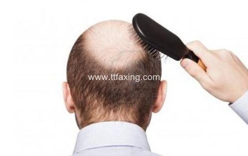 男人脱发是什么原因引起的 男人脱发原因及治疗方法 ttfaxing.com